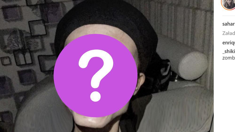 Sobowtórka Angeliny Jolie ZŁAMAŁA KARK? Wygląda przerażająco