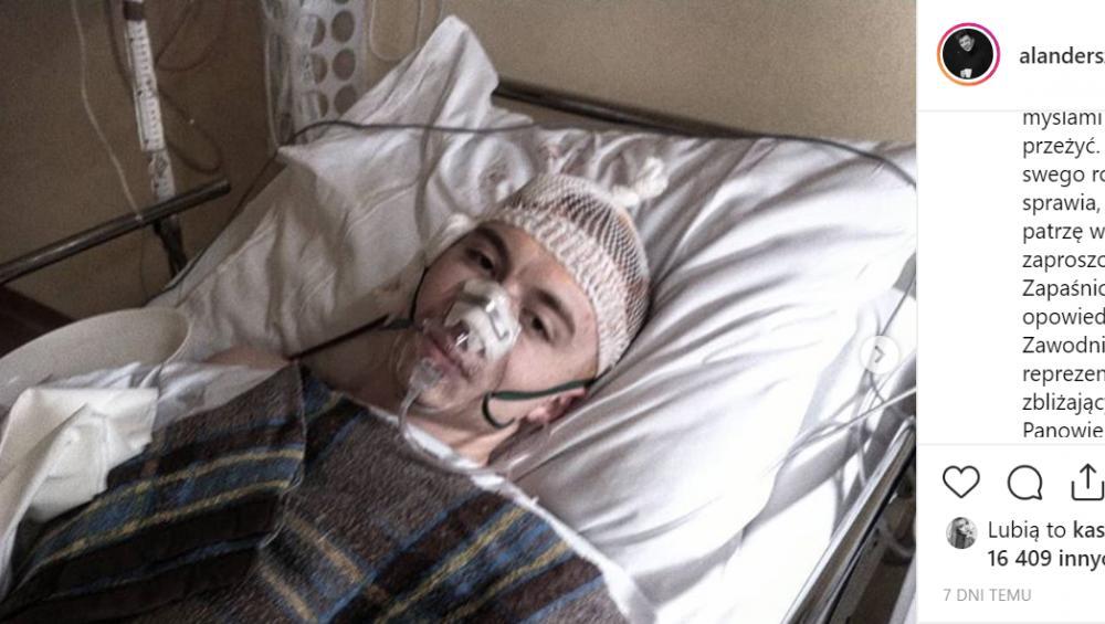 Alan Andersz pokazał zdjęcie po trepanacji czaszki
