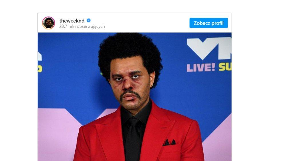 Pobity The Weeknd pojawił się na gali. Co się stało?