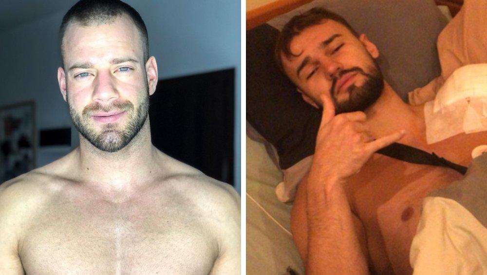 Franek z Love Island zapłacił za operację Sebastiana z Hotel Paradise. Czeka go rehabilitacja