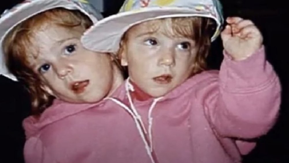 Najsłynniejsze bliźniaczki syjamskie mają 31 lat. Co dzieje się z Abby i Brittany Hensel?